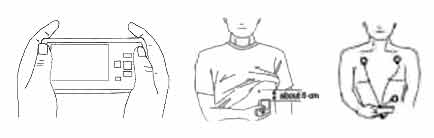 ECG measurement positions