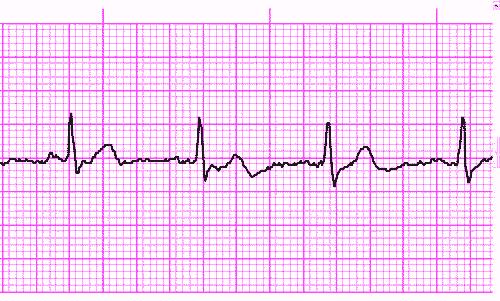Atrial Fibrillation • LITFL Medical Blog • ECG Library ... |Ekg Examples